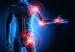 Le paracétamol dans l'arthrose est-il justifié?